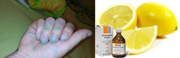 Зеленка отмывается лимоном и спиртом
