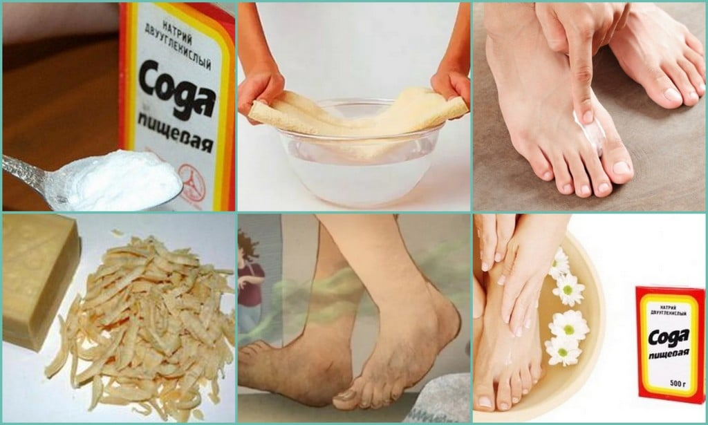 Как избавиться от запаха в обуви содой